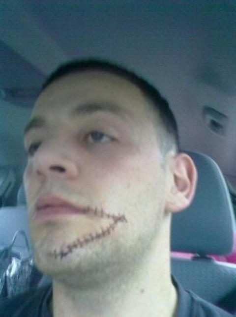 Boxer and bus driver Sam Horton needed 50 stitches after being attacked by a passenger.