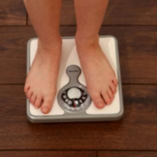 Medical experts are urging the Government to set up a taskforce to tackle childhood obesity